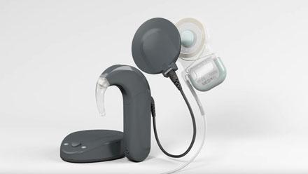 MED EL cochlear implant ile ilgili görsel sonucu
